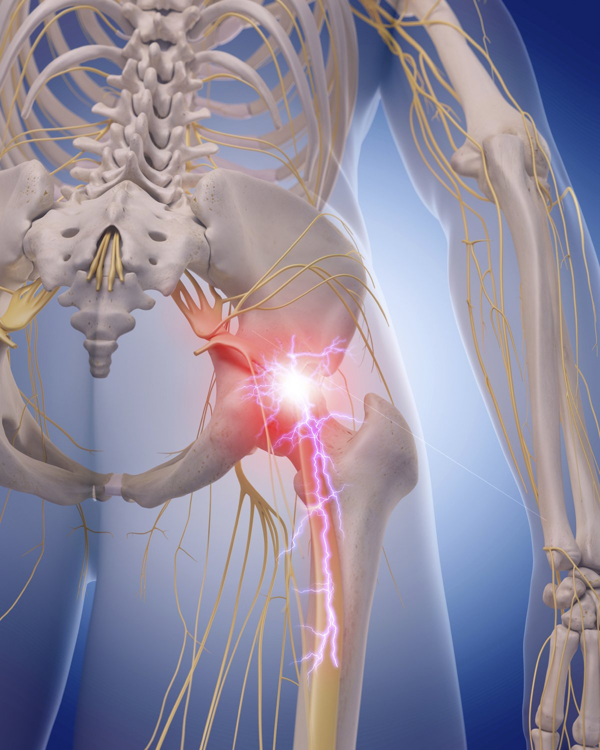 Once your back pain radiates down your backside and leg, that's sciatica
