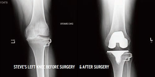 Left Knee - Before and After Surgery